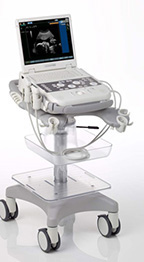 siemens-acuson-p300-ultrasound-system