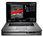 terason-t3200-ultrasound-machine